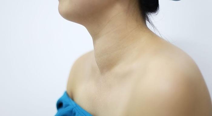 Fucoidan có thể gây rối loạn chức năng tuyến giáp, bướu cổ thừa i ốt