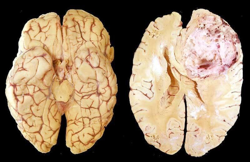 U nguyên bào thần kinh đệm ở não