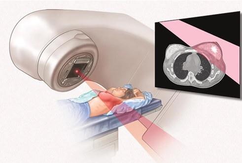 Mục tiêu của xạ trị ung thư là để triệt căn hoặc giảm nhẹ triệu chứng