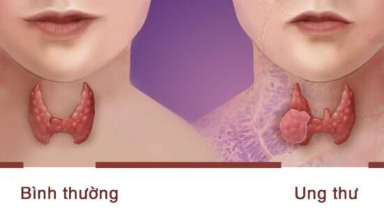 Ung thư tuyến giáp có thể xảy ra do rối loạn miễn dịch